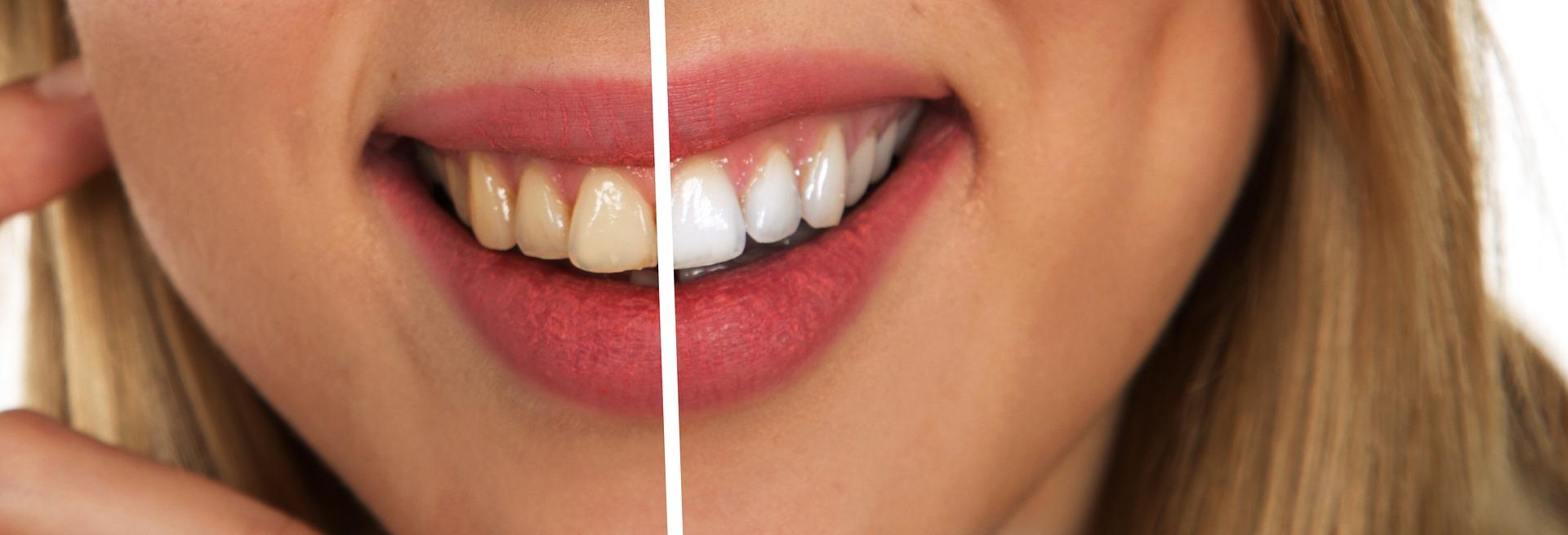 beleni zubu pred a po
